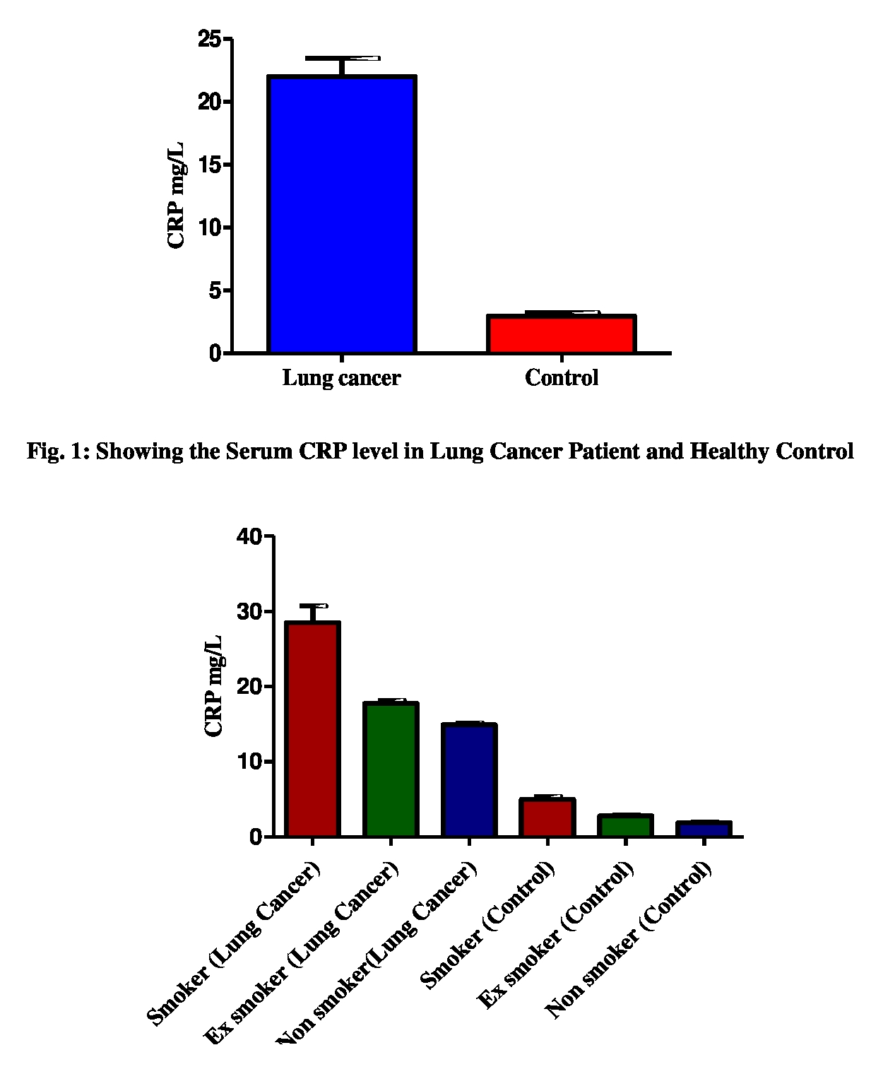 Research Article Open Access Int J Life Sci Scienti Res 4 2 1698 1702 March 2018 Association Of Serum Crp Level With Lung Cancer And Healthy Control Of North Indian Population Priyanka Gaur1 Sarika Pandey2 Sandeep Bhattacharya1 Surya